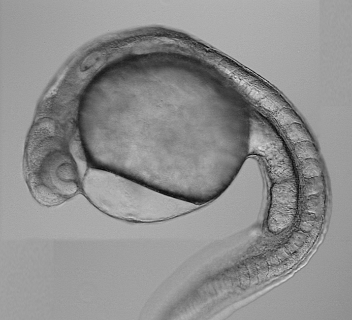 Zebrafish embryos measure only 3-4 mm seven days after they hatch. Chandrasekhar observes their motor neurons in this stage to discern how they migrate as the embryo develops.