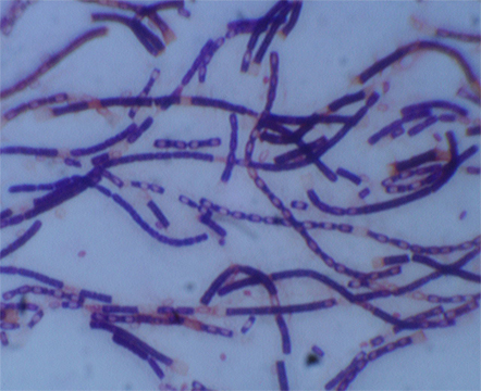 Anthrax bacteria is a rod-shaped culture. Most common forms of transmission are through abrasions in the skin and inhalation.